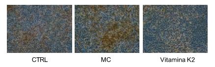 Effetto della vitamina K2 sul processo di calcificazione in cellule del vaso.